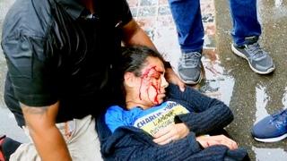 Hatun Tash Stabbed at Speakers' Corner