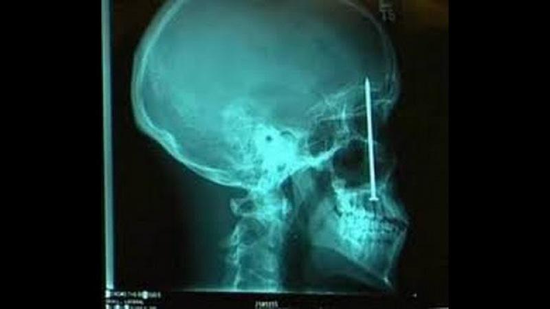 Гвоздь попал в череп Инородные тела Foreign body