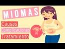 Miomas en el útero Síntomas y tratamiento para eliminar los Miomas