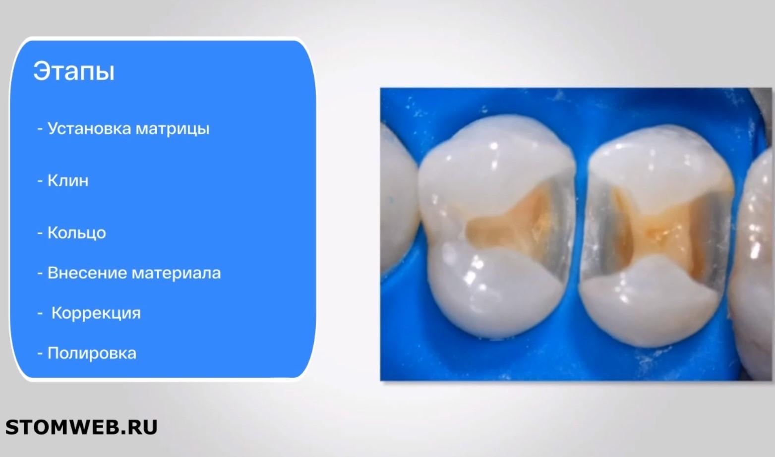 Реставрация жевательных зубов