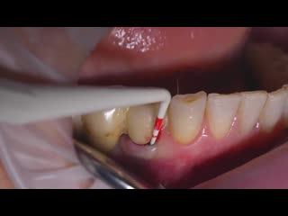 Implant maintenace with gbt (guided biofilm therapy)