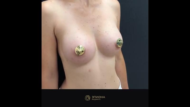 Обзор результатов увеличения груди через 3 мес после операции Эпиона Медикус