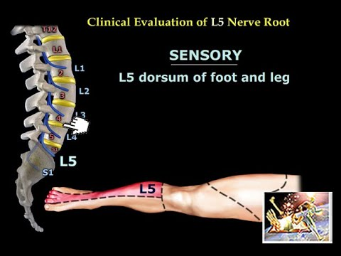 Neurological Evaluation Of The Lumbar Nerve Roots Everything You Need To Know Dr Nabil Ebraheim